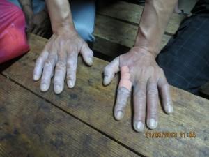 ידיו של עובד שנפגע מעבודות הריסוס